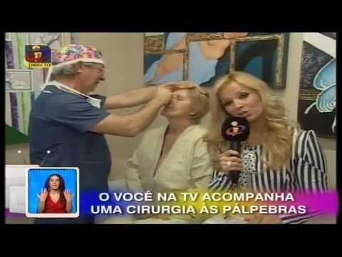 Você na TV - Dr. Ângelo Rebelo - Cirurgia em Directo - Blefaroplastia