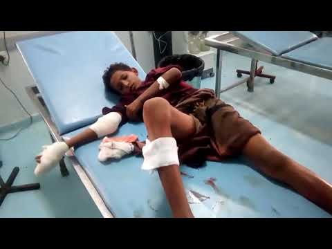 إصابة طفل بجروح خلال قصف لمليشيات الحوثي استهدف مزارع المواطنين في المُتينة بالحديدة
