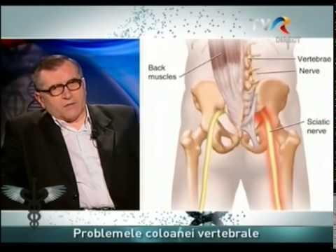 Durerile de spate - tratamente naturiste