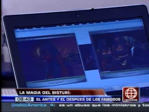América Noticias: 03.02.14-Vea el antes y después de algunas famosas antes de pasar por el quirófano