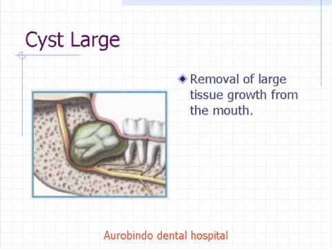 Dental cyst removal large / Aurobindo dental hospital