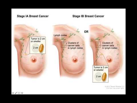 Treatment of breast cancer part 1 /staging of breast cancer farsi درجه بندی سرطان پستان