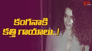 How Is Kangana Ranaut Injured On Manikarnika Sets ? #FilmGossips - TELUGUONE