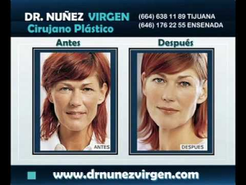 Dr. Manuel Nunez Virgen - Mesoterapia-Botox-Hyal-System-Restylane