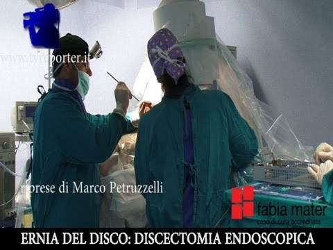 ERNIA DEL DISCO: INTERVENTO IN DIRETTA - A SPINAL DISC HERNIATION