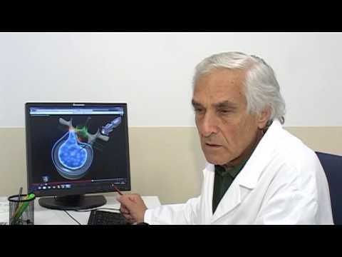 Ortopedia ne Salus - Dr. Leonardo Basso dhe Dr. Fabrizio Buzzi