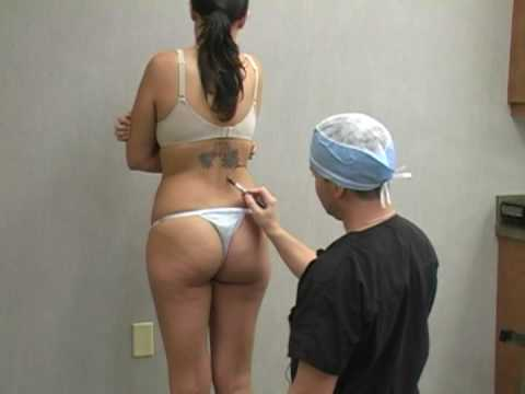 Liposuction Lipo Procedure with Dr. William Hall Kelli Documentary