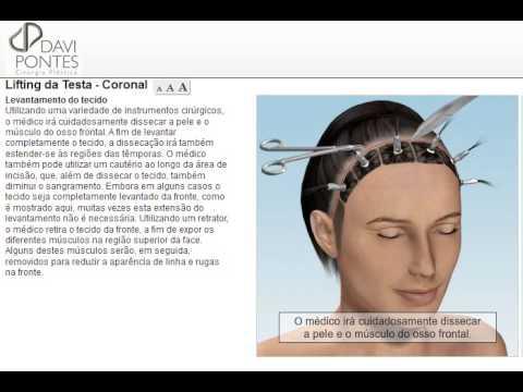 Cirurgia Plástica Lifting da Testa - Dr. Davi Pontes - Fortaleza - Natal - São Luís