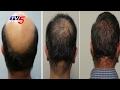 Advanced Treatments & Techniques For Bald Head | Good Health | TV5 News