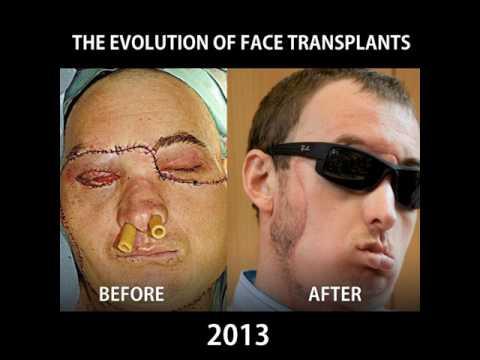 The Evolution of Face Transplants