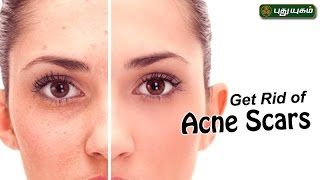 Ways To Remove Acne Scars & Pimple Marks   Beauty Tips For Women 16-05-2017  PuthuYugam TV Show