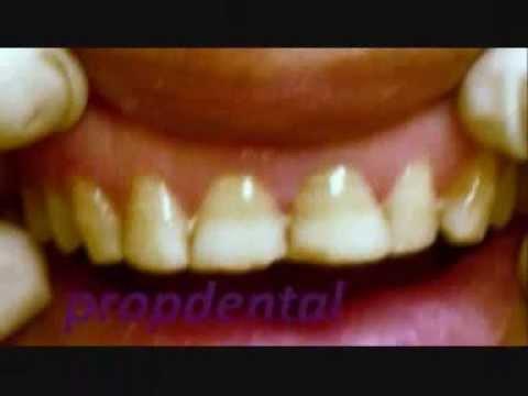 Protesis dentales de zirconio