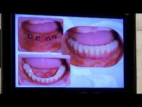 Prótese Fixa sobre Implantes Dentários -- Tipo protocolo