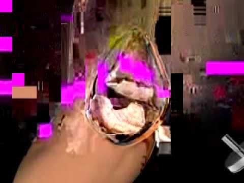 Dizkapağı ameliyatı animasyonu