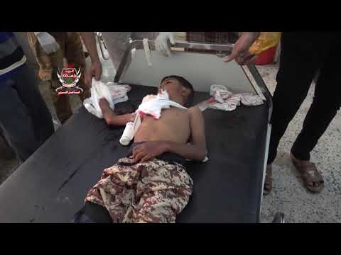 الحديدة..مليشيات الحوثي تقتل طفلاً وتصيب شابة من اسرة واحدة بمدينة حيس