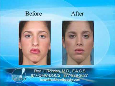 Rhinoplasty - A Surgery of Millimeters