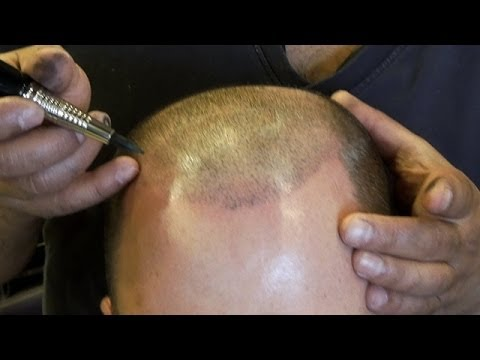 Deja Vu Hair Studio Los Angeles | Scalp Micro Pigmentation | Los Angeles Hair micropigmentation
