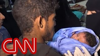 Rare glimpse into Yemen's bloody war - CNN
