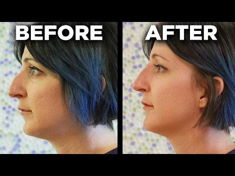 People Get The 5-Minute Nose Job