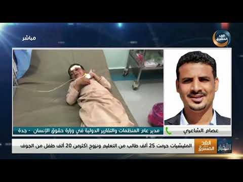 عصام الشاعري: على المجتمع الدولي تحمل مسؤولياته الأخلاقية تجاه ما يحدث في اليمن