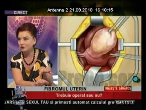 Dr. ZORELA SGARBURA -Fibromul uterin ( 3)
