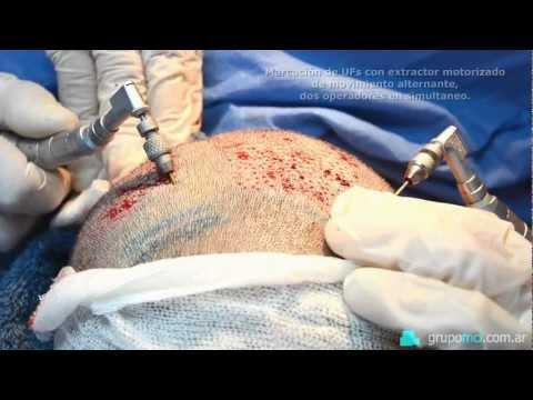 Implante Capilar, técnica FUE. GrupoMCI