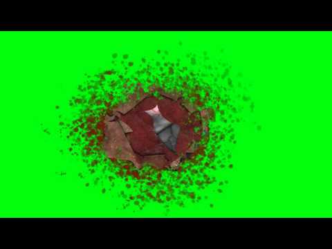 Severe Gun Wound - Green Screen Animation