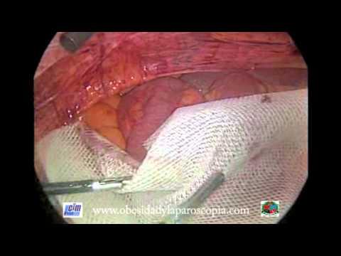 Eventroplastia abdominal con malla por laparoscopia