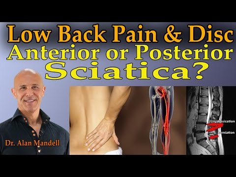 Low Back Pain & Disc Conditions....Anterior or Posterior Sciatica? - Dr Mandell