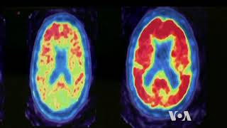 Unlocking Secrets of a Sharp Mind at Old Age - VOAVIDEO