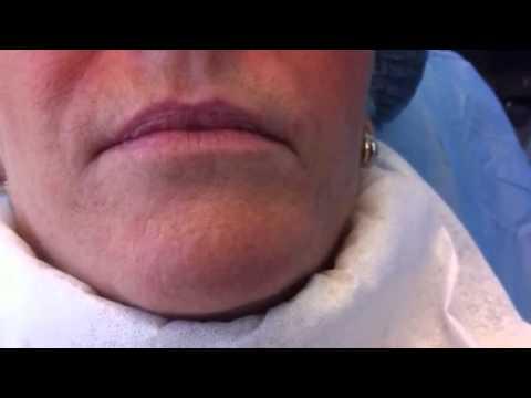 Aumento de labios con ácido hialurónico Clínica Dermitek Bilbao. http://www.dermitek.com