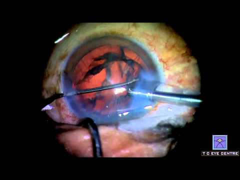 Live Cataract Surgery by Phacoemulsification at TC Eye Centre, Gomti Nagar, Lucknow