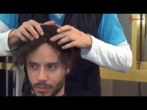 implante capilar ,implate de cabello , protesis capilares alopecia cura , calvicie ,tratamiento