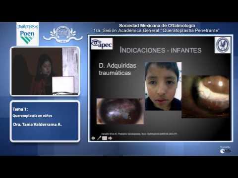 Queratoplastia en los niños, principales causas e indicaciones.-  Dra Tania Valderrama Atayupanqui