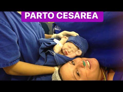 Relato do meu parto cesaria
