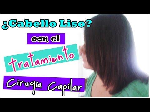 Cirugía Capilar (Mi experiencia) | Mente de Mujer por Carolina HD