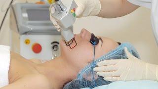 Отзыв. Лазерная шлифовка лица (лазерный пилинг). Косметологический центр
