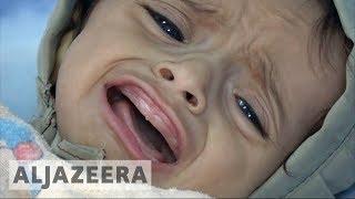 Dengue fever, malaria worsen Yemen humanitarian crisis - ALJAZEERAENGLISH