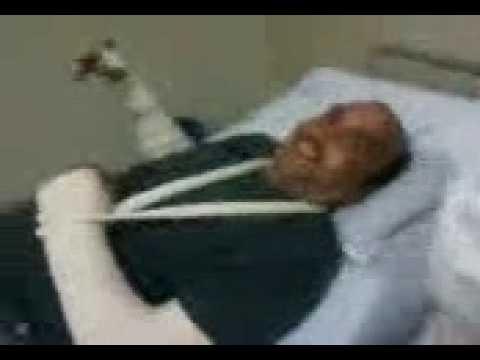 www.maxvendas-br.com - Marco Solda acidente com moto dafra