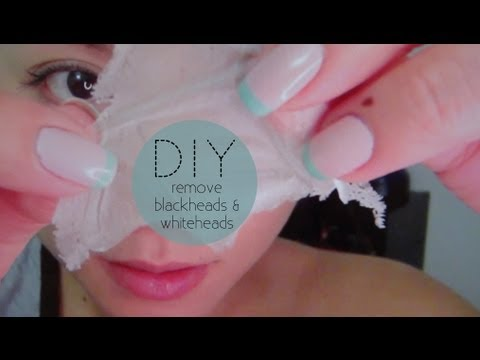 ⭕ How to Remove Blackheads & Whiteheads | HAUSOFCOLOR