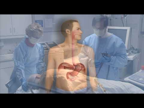 Medical Treatment for Barretts Esophagus, Photodynamic Therapy-Mayo Clinic