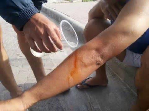 การปฐมพยาบาล ผู้ที่ได้รับอันตรายจากแมลงสัตว์กัดต่อย