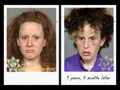 the Real Faces of Meth Video - by Burton Films