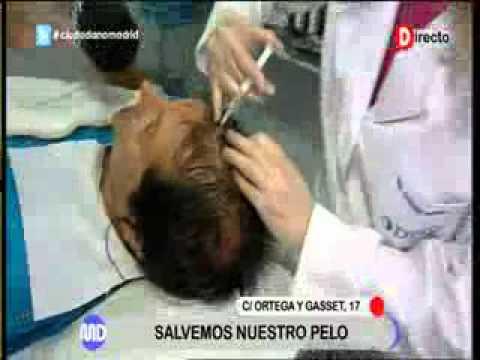 Tratamiento capilar en Clínica Francesa Dray en Madrid Directo