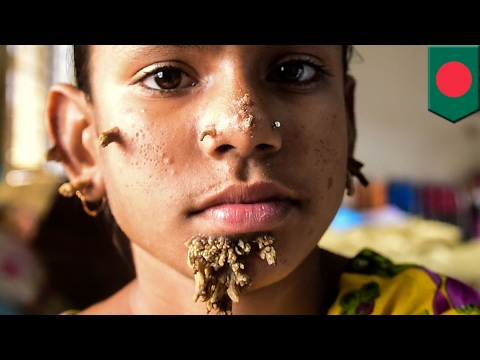 Tree man disease Bangladeshi girl, 10, might be first female with rare skin syndrome