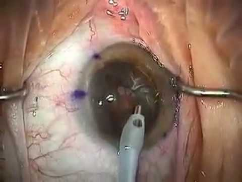 Modern Cataract Surgery: Alcon ReSTOR IOL with LRI -cUYbaJrtR_s