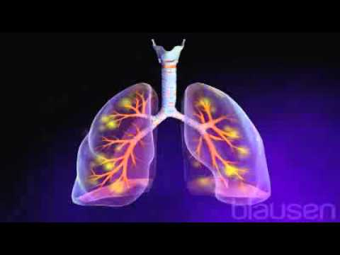 Pneumonia   Virtual Medical Centre