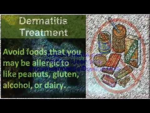 How seborrheic dermatitis treatment  ---------You Must See It!