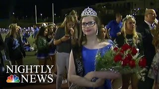 The California Girl Who Can't Go Out in the Sun Named Homecoming Queen | NBC Nightly News - NBCNEWS