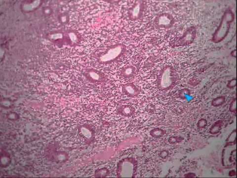 1 proliferative endometrium